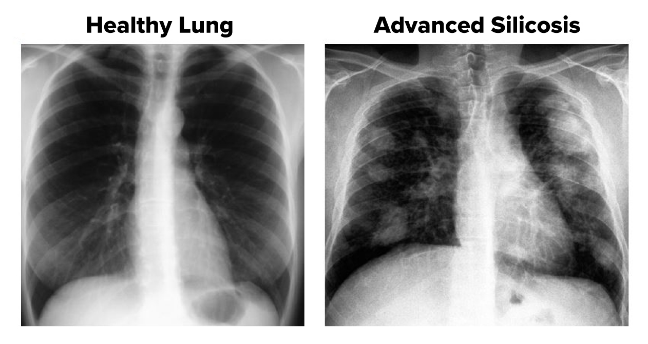 silicosis-vs-healthy-lung